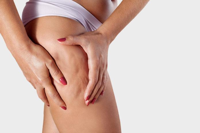 Cellulite : causes, traitement et solutions naturelles